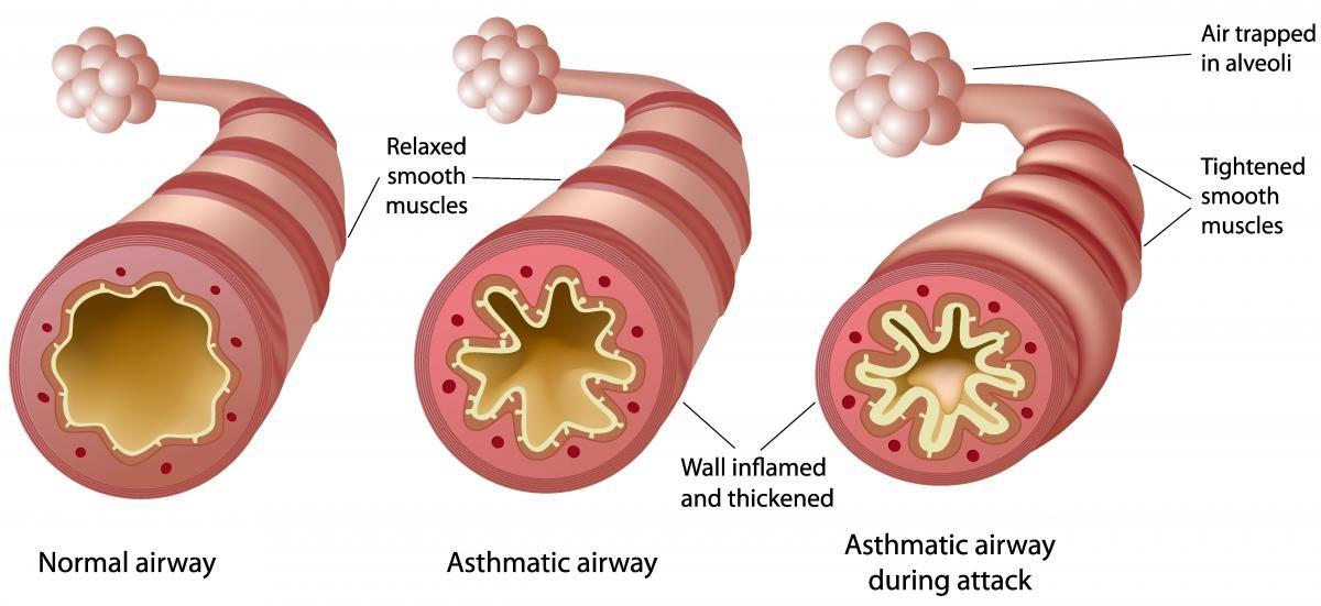 MA_asthma blog image